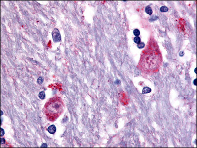 Muscarinic Acetylcholine Receptor M3 (CHRM3) (3rd Cytopl. Dom.) rabbit polyclonal antibody, Aff - Purified