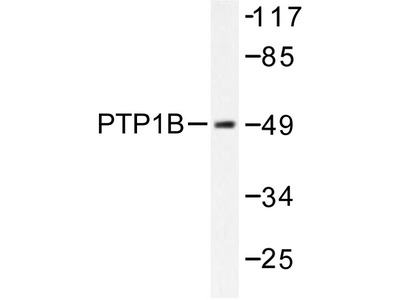 PTP1B (PTPN1) rabbit polyclonal antibody, Aff - Purified