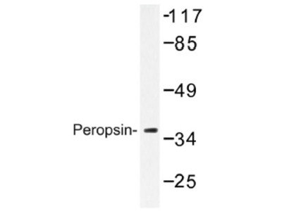 Peropsin (RRH) rabbit polyclonal antibody, Aff - Purified