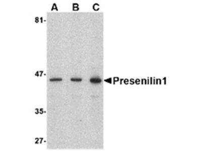 anti Presenilin-1