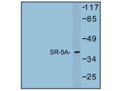 anti Serotonin receptor 5A (HTR5A)
