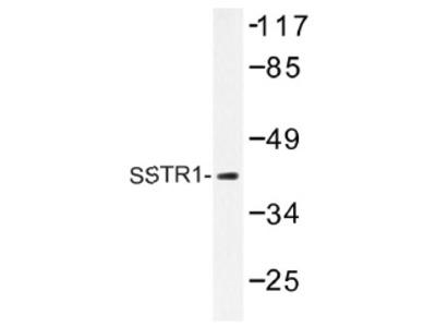 anti SSTR1