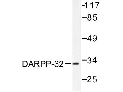 anti DARPP32