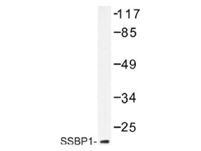 anti SSBP1
