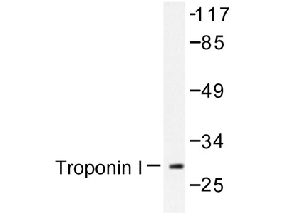 anti Cardiac Troponin I