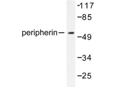 anti Peripherin