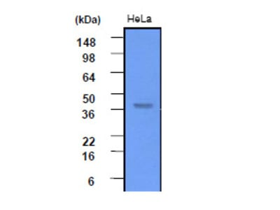 anti Casein kinase II subunit alpha