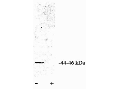 PP2A-alpha (PPP2CA) rabbit polyclonal antibody, Purified