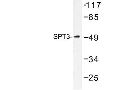 anti SUPT3H / SPT3