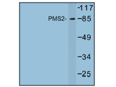 anti PMS2