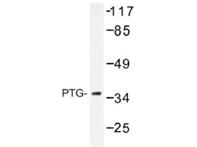 anti PPP1R3C / PTG