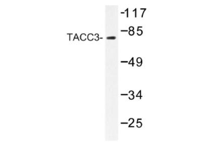 anti TACC3 / ERIC1