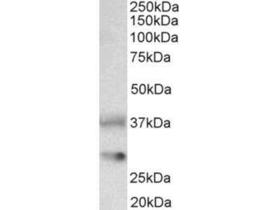Clusterin /APOJ Antibody
