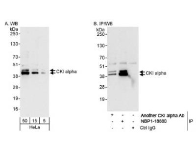 Rabbit Polyclonal Casein Kinase 1 alpha Antibody