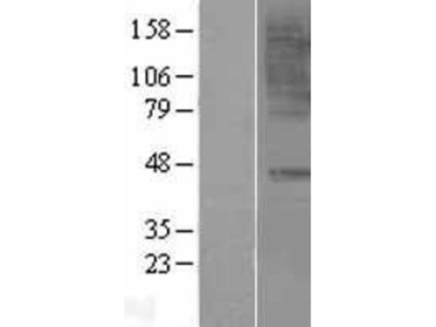 CCR6 Overexpression Lysate