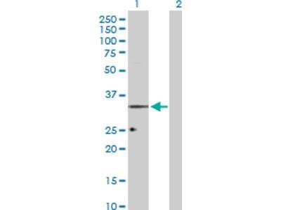 ORL1 / OPRL1 Antibody
