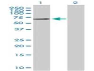 t-Plasminogen Activator / tPA Antibody