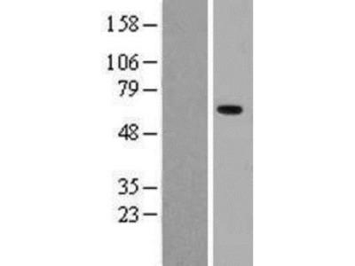 Pancreatic Amylase Beta Overexpression Lysate (Native)