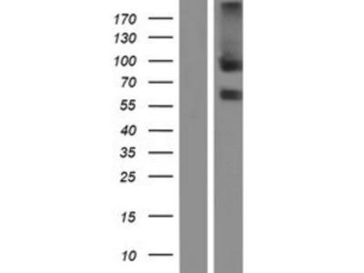 TEM8 / ANTXR1 Overexpression Lysate