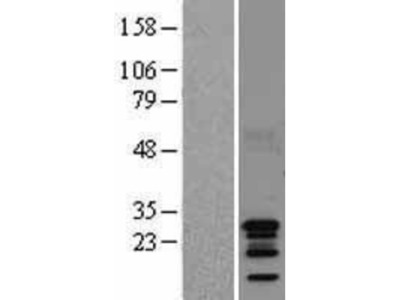 BCA3 Overexpression Lysate