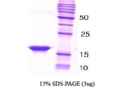 beta-Synuclein Recombinant Protein