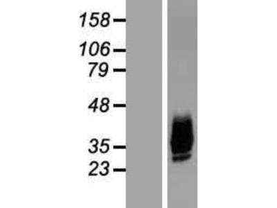 Aquaporin-10 Overexpression Lysate