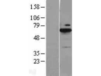 BLNK Overexpression Lysate