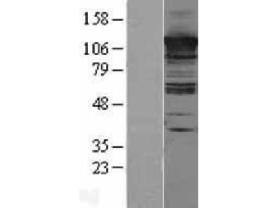 CC2D1A Overexpression Lysate
