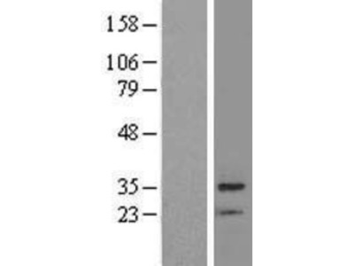 BRMS1 Overexpression Lysate