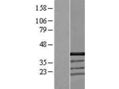 CCDC94 Overexpression Lysate