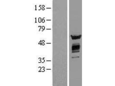 AKT2 Overexpression Lysate