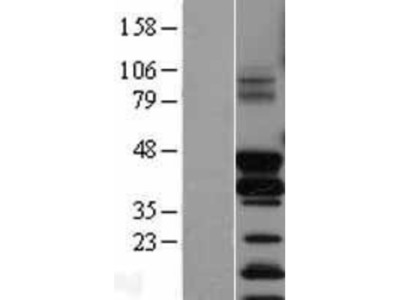FosB / G0S3 Overexpression Lysate