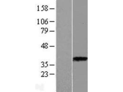 ASPA Overexpression Lysate