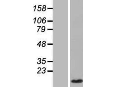 CCL4L1 / LAG-1 Overexpression Lysate
