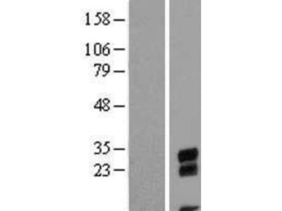 CBE1 Overexpression Lysate
