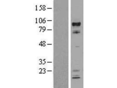 ARNT/HIF-1 beta Overexpression Lysate