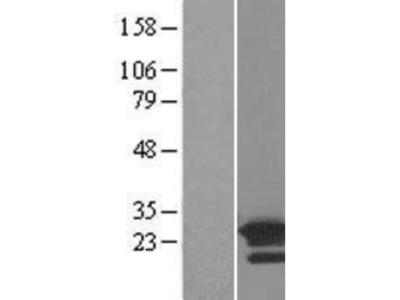 ARL8B Overexpression Lysate