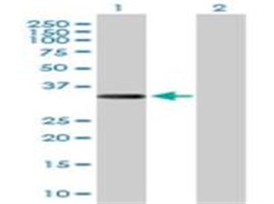 Collagen XXIII alpha 1 Antibody