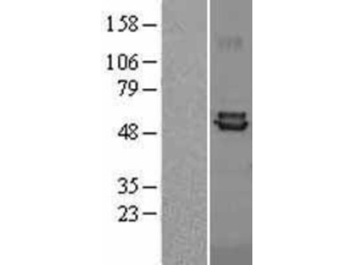 Ferredoxin Reductase Overexpression Lysate