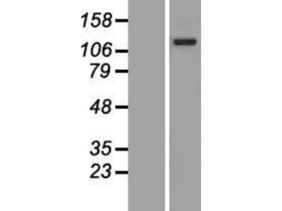 ANKRD27 Overexpression Lysate
