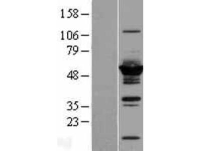 DYNC1LI2 Overexpression Lysate