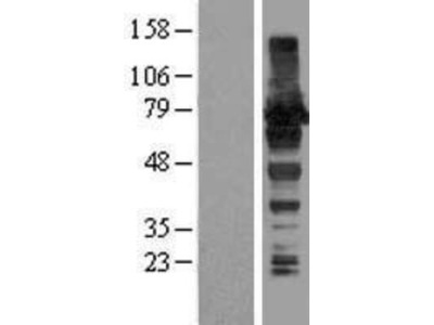 HA95 /AKAP8L Overexpression Lysate