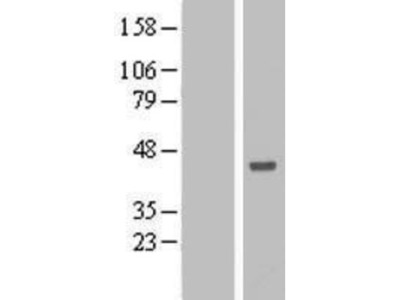 ANKRD53 Overexpression Lysate