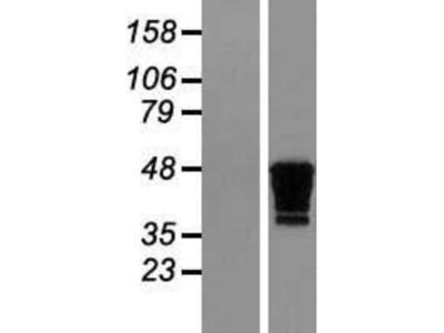 Creatine kinase MT 1B Overexpression Lysate