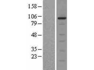 ERK5 / BMK1 Overexpression Lysate
