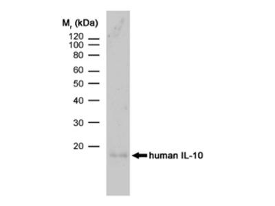 RAT ANTI HUMAN INTERLEUKIN 10:Low Endotoxin