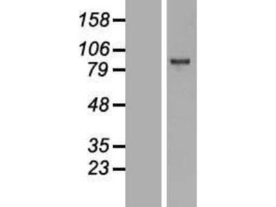 EZH2 / KMT6 Overexpression Lysate