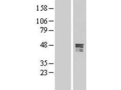 CPA5 Overexpression Lysate (Native)