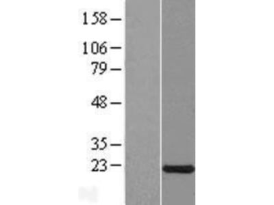 CXorf40A Overexpression Lysate