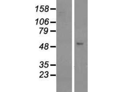 GCOM1 Overexpression Lysate